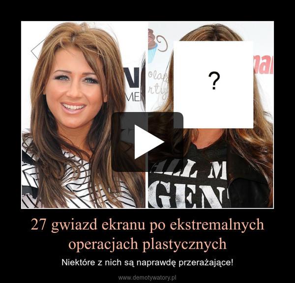27 gwiazd ekranu po ekstremalnych operacjach plastycznych – Niektóre z nich są naprawdę przerażające!