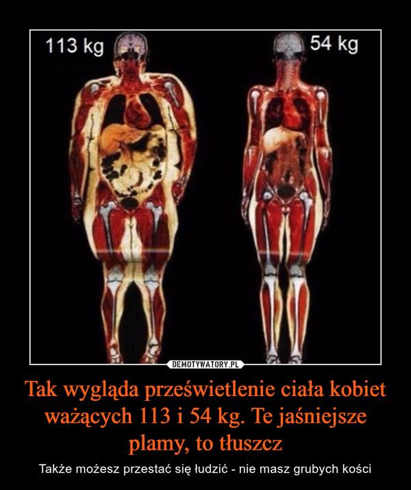 Tak wygląda prześwietlenie ciała kobiet ważących 113 i 54 kg. Te jaśniejsze plamy, to tłuszcz – Także możesz przestać się łudzić - nie masz grubych kości