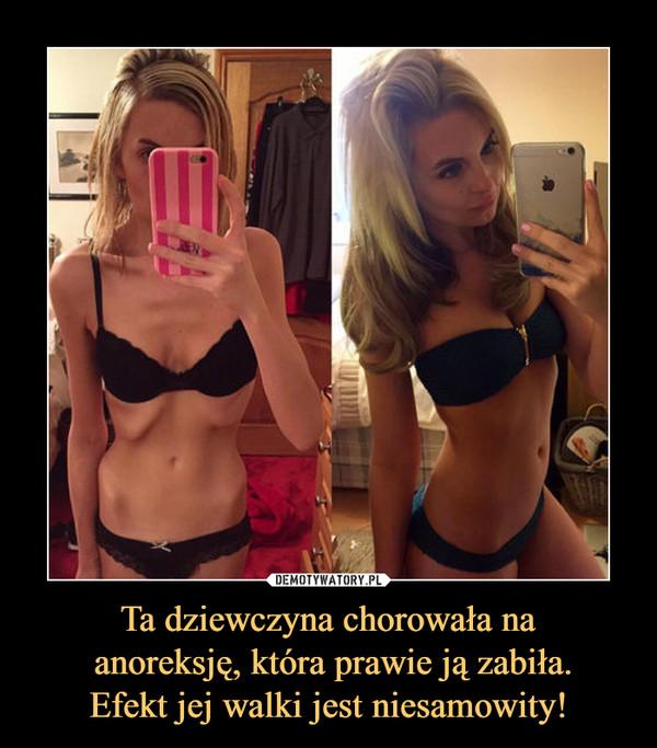 Ta dziewczyna chorowała na anoreksję, która prawie ją zabiła.Efekt jej walki jest niesamowity! –