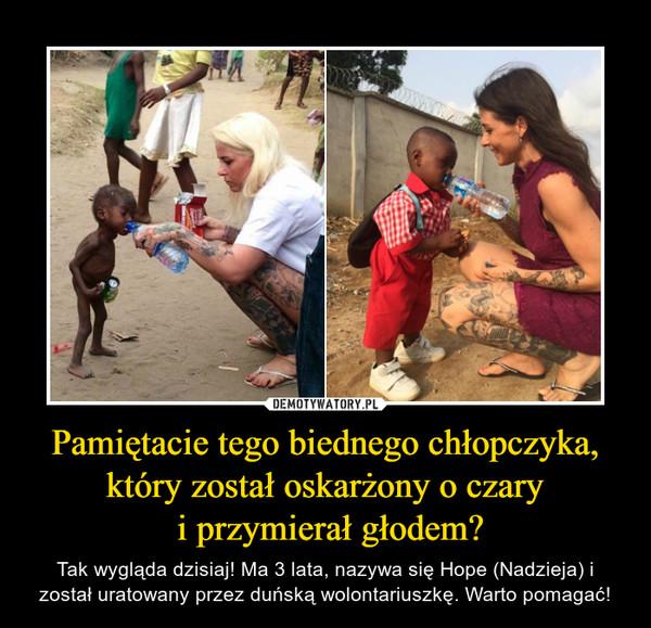 Pamiętacie tego biednego chłopczyka, który został oskarżony o czary i przymierał głodem? – Tak wygląda dzisiaj! Ma 3 lata, nazywa się Hope (Nadzieja) i został uratowany przez duńską wolontariuszkę. Warto pomagać!