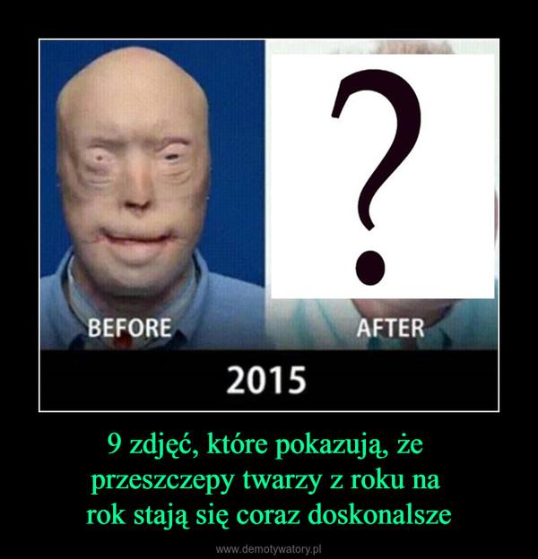 9 zdjęć, które pokazują, że przeszczepy twarzy z roku na rok stają się coraz doskonalsze –