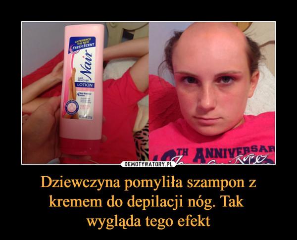 Dziewczyna pomyliła szampon z kremem do depilacji nóg. Tak wygląda tego efekt –