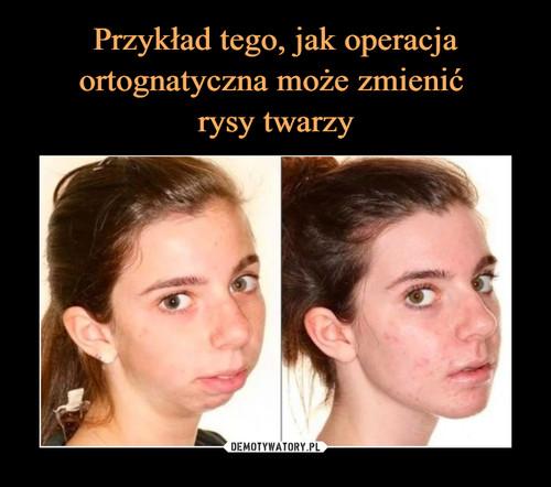 Przykład tego, jak operacja ortognatyczna może zmienić  rysy twarzy