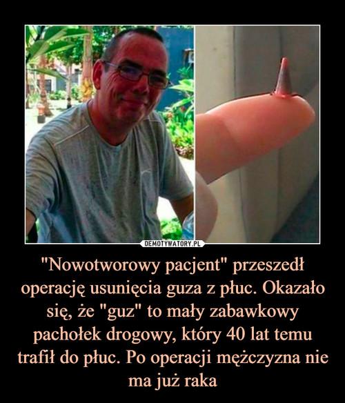"""""""Nowotworowy pacjent"""" przeszedł operację usunięcia guza z płuc. Okazało się, że """"guz"""" to mały zabawkowy pachołek drogowy, który 40 lat temu trafił do płuc. Po operacji mężczyzna nie ma już raka"""