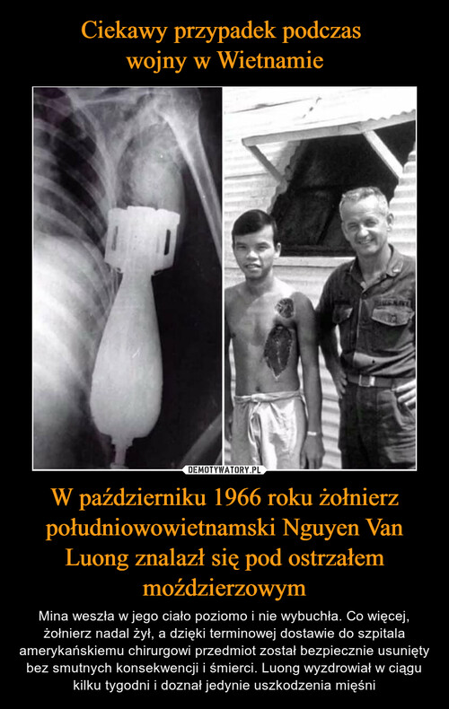 Ciekawy przypadek podczas  wojny w Wietnamie W październiku 1966 roku żołnierz południowowietnamski Nguyen Van Luong znalazł się pod ostrzałem moździerzowym