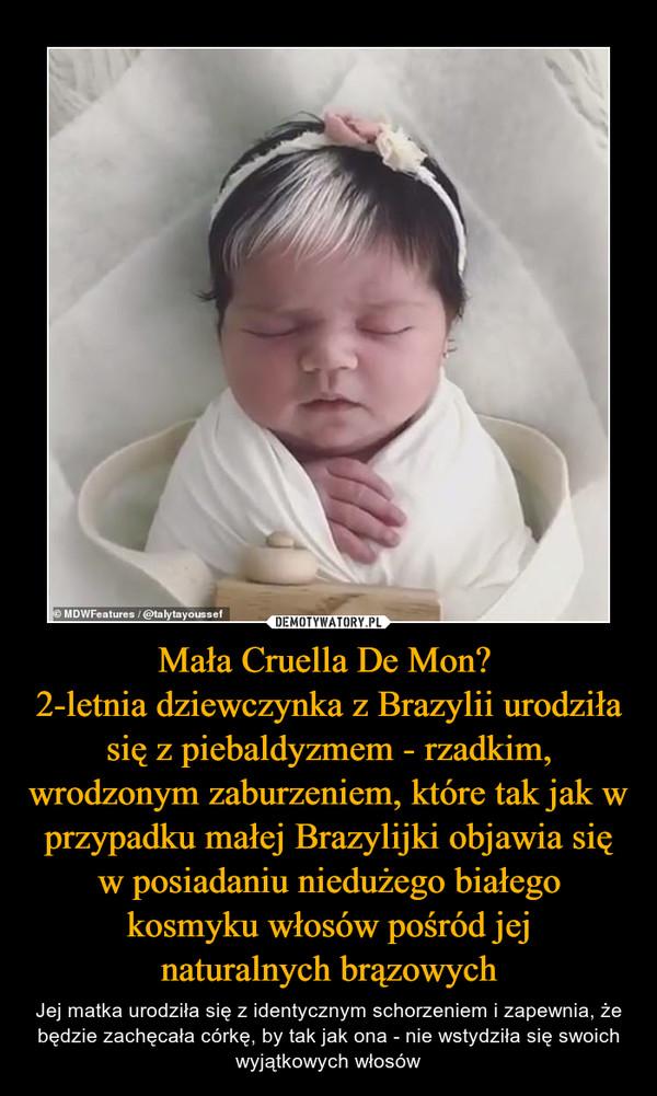Mała Cruella De Mon? 2-letnia dziewczynka z Brazylii urodziła się z piebaldyzmem - rzadkim, wrodzonym zaburzeniem, które tak jak w przypadku małej Brazylijki objawia się w posiadaniu niedużego białego kosmyku włosów pośród jej naturalnych brązowych